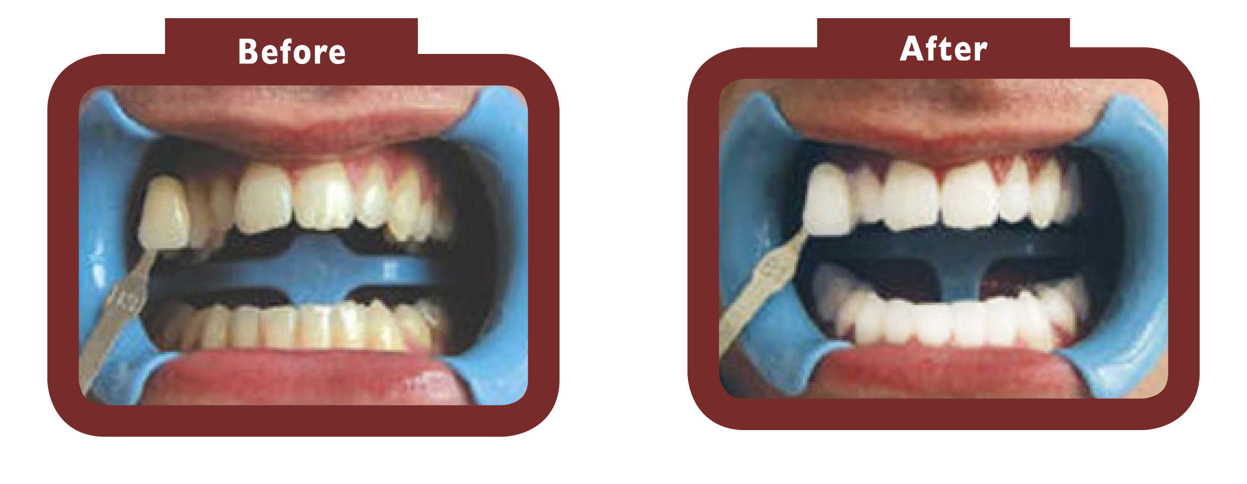 before and after teeth whitening - LA TEETH