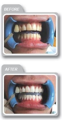 Leamington Spa laser teeth whitening